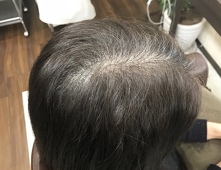 【今週中】白髪染めさせてください!